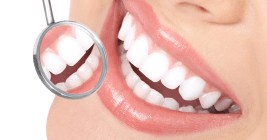 Best Teeth Whitening Clinic in New Lynn