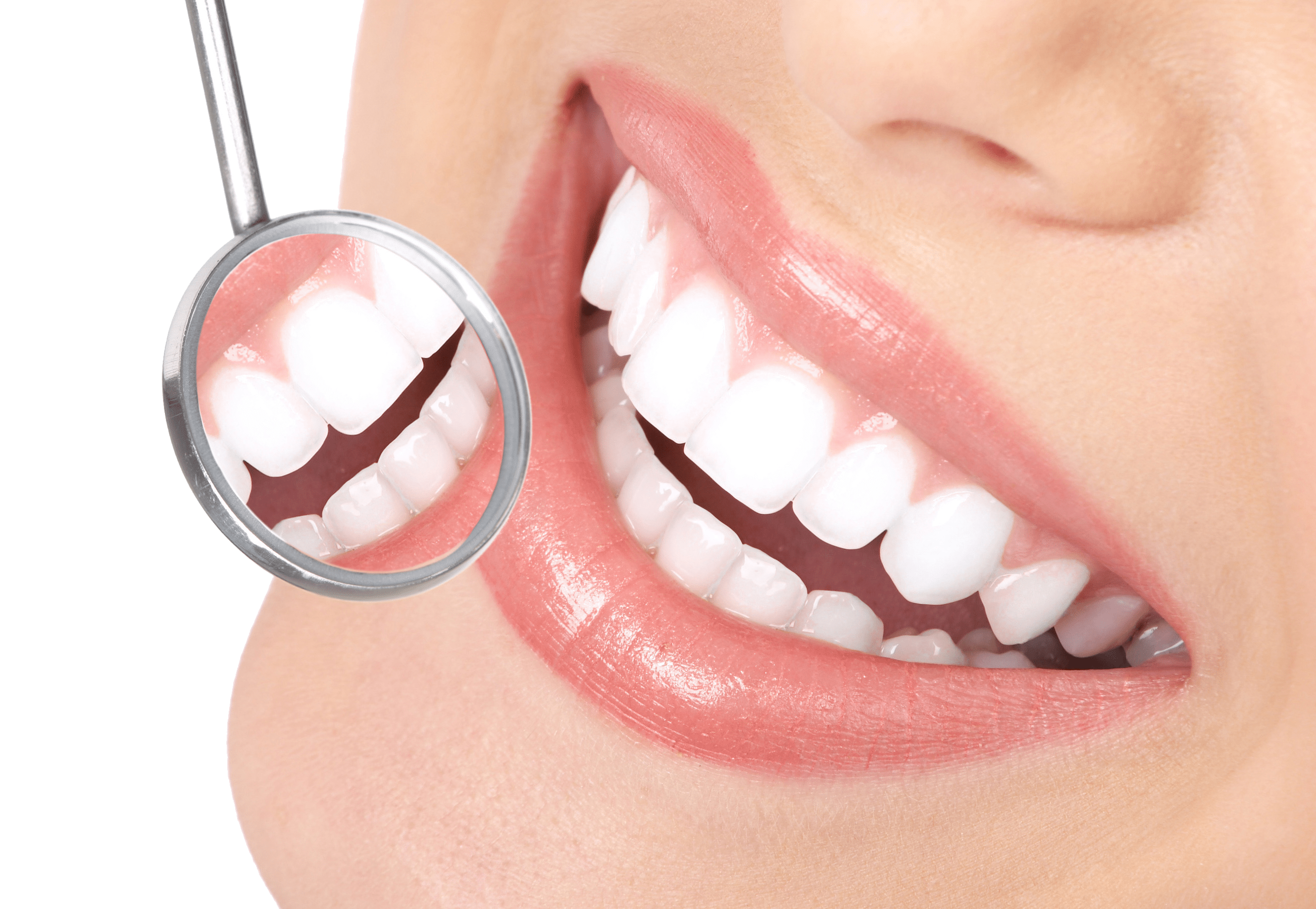 Best Teeth Whitening Clinic in New Lynn
