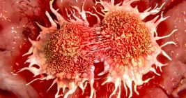 How to Treat Different Forms of Cancer