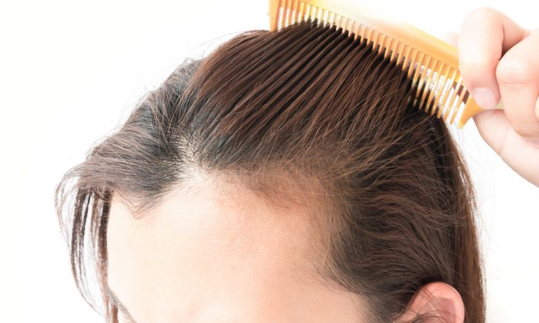 When to Consult a Specialist For Hair Loss Treatment