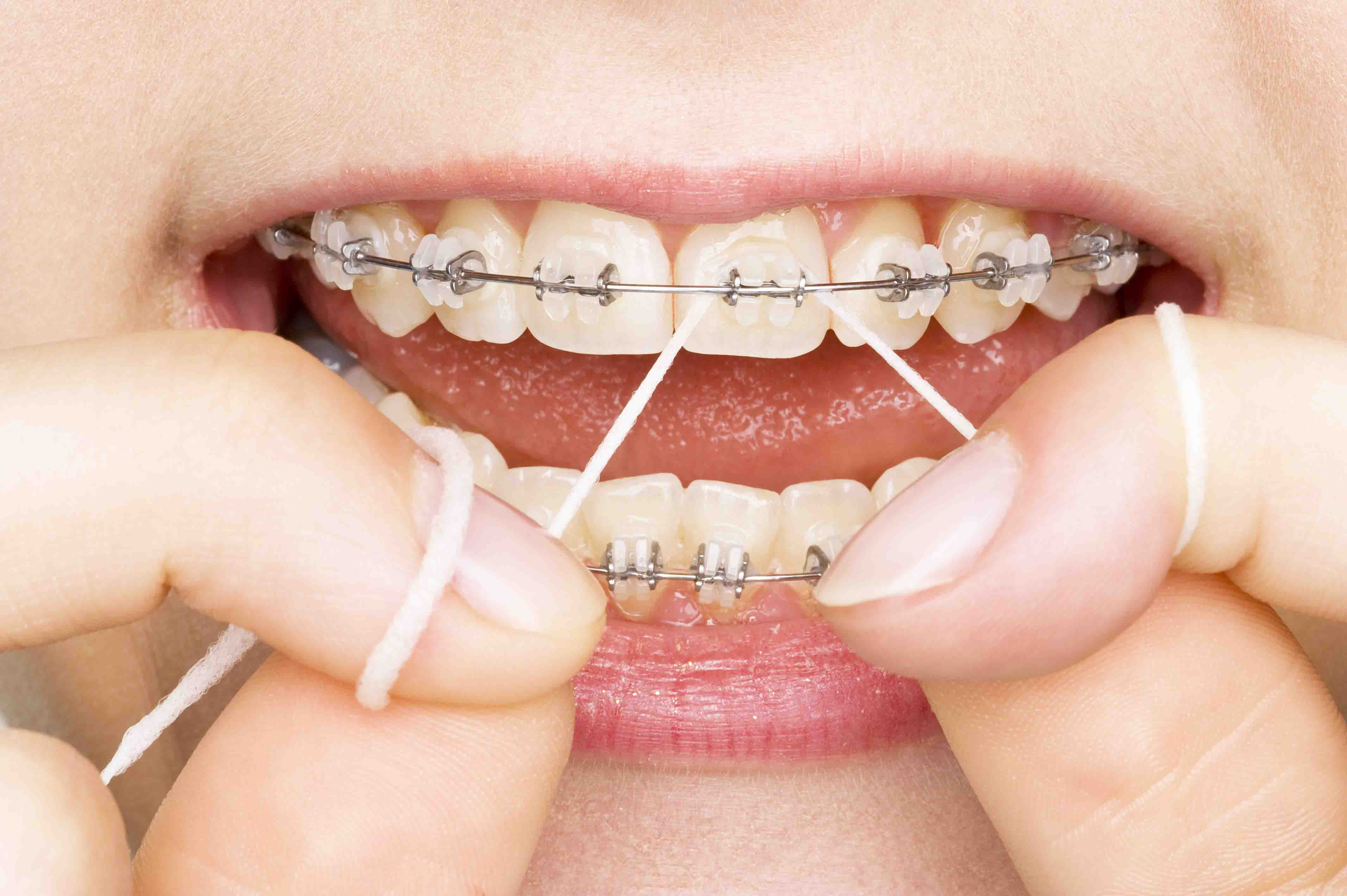 Why It Is Important To Consult With A Family Dentist?