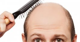 Best Home Remedies For Stopping Hair Fall