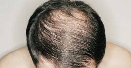 Hair Replacement Melbourne